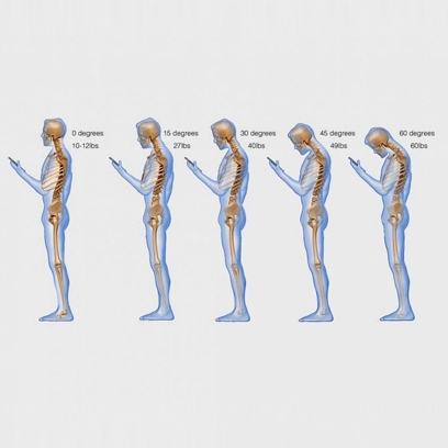 What Texting Does To Your Neck - YouTube