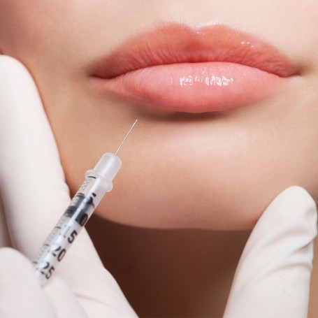 Botox & fillers: tell us what you think